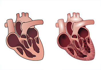heart-medical-illustration
