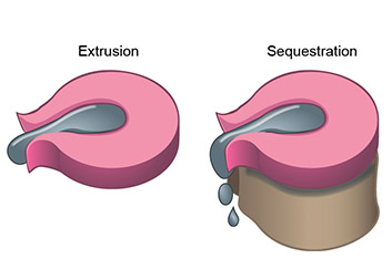 spinal disc herniation illustration